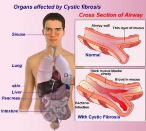 cystic-fibrosis-organ