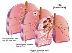 TB-Degradation